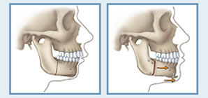 illustration of facial profile before and after orthognathic surgery